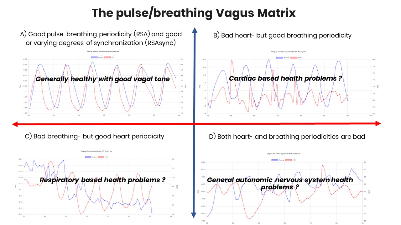 Findings from 3000 Vagus ECG Tests