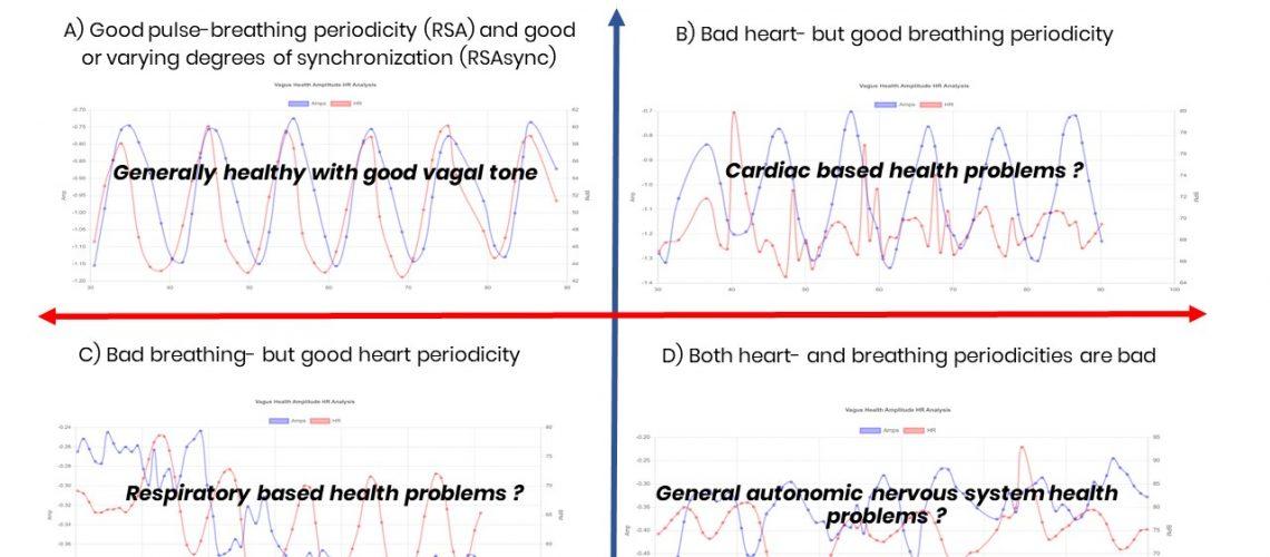 The-Vagus-ECG-Test-pulse-breathing-matrix